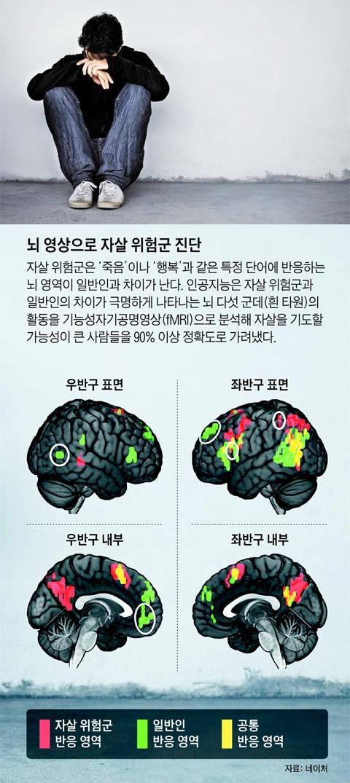 AI가 뇌 영상 분석… 자살 위험 미