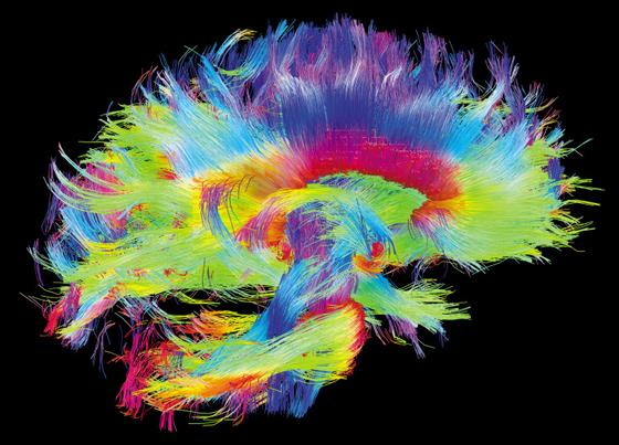 베르베르 소설처럼 인간 두뇌 보존해