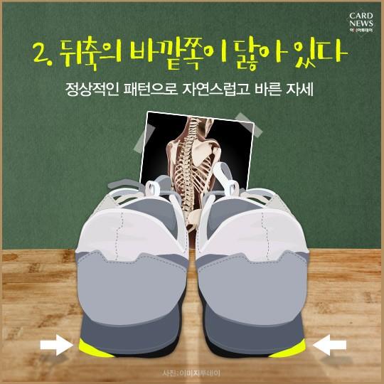 신발로 알아보는 올바른 걸음 자가진단