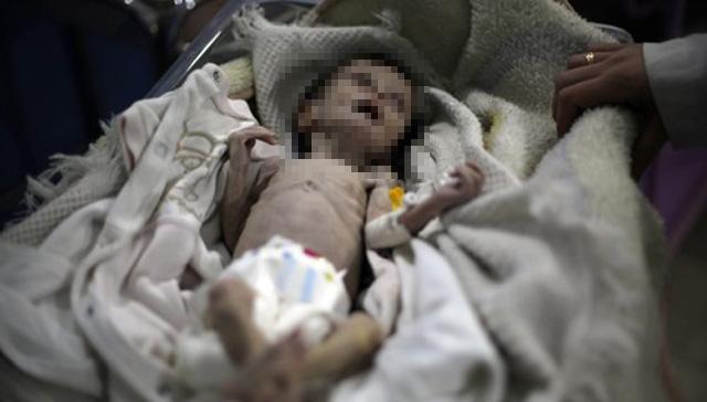 현존하는 최악의 전쟁터에 사는 아이들