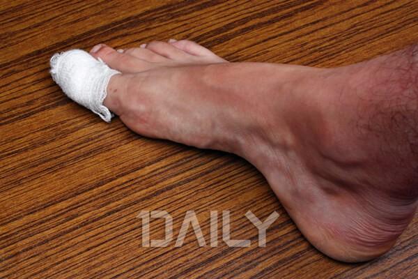 발이 붓는 이유가 갑상선 문제? 발