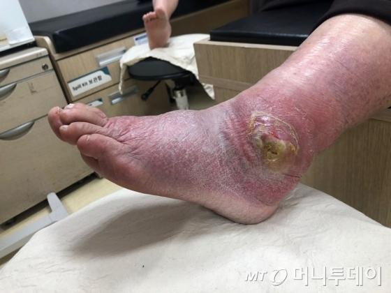 """안 아파서 위험한 병… """"맨발로 청소"""