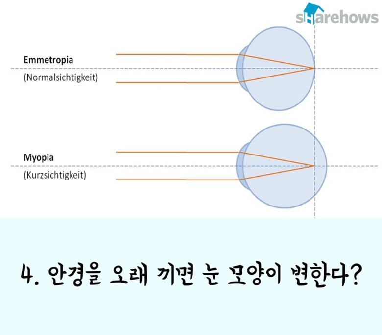 시력에 관한 잘못된 상식 7가지
