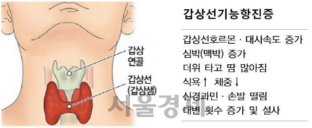 스마트워치로 갑상선기능항진증 조기 판